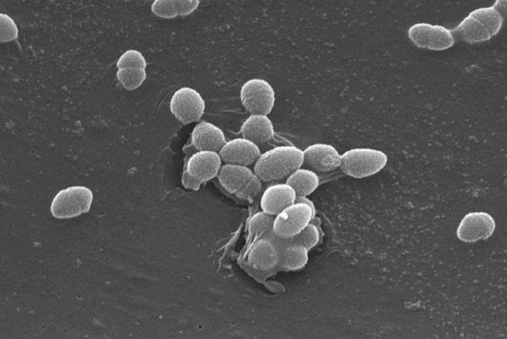 enterokoky, mikrobiologia vody